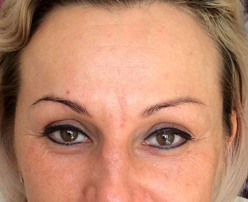 Brow Lift with Dermal Fillers Training