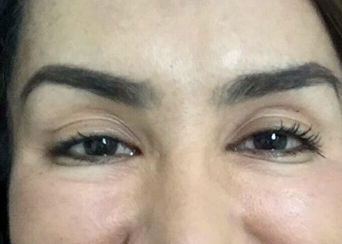 Frown Lines with Botox Courses