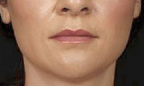 Jawline Slimming with Botox Courses