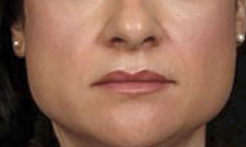 Jawline Slimming with Botox Training Courses