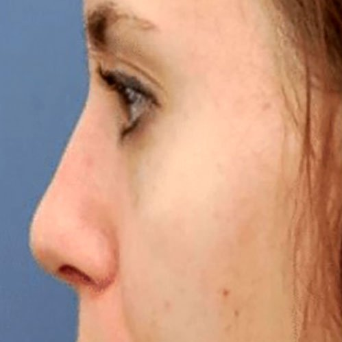 Mobile Nose with Dermal Fillers Training