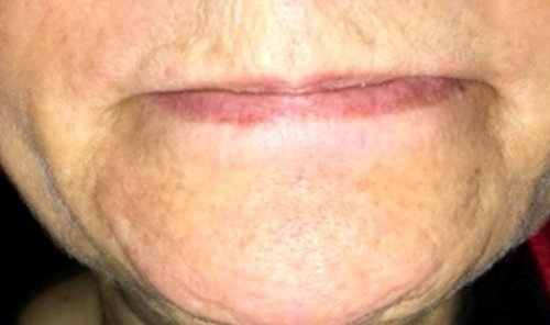 Pebbled Chin with Botox Courses