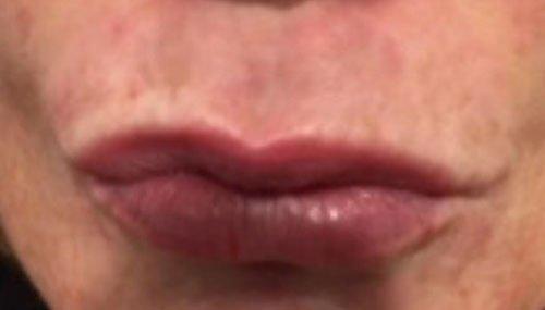 Smokers Lines Botox Courses Training